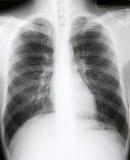 Radiografía del pecho del paciente Foto de archivo libre de regalías