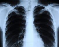Radiografía del pecho humano fotografía de archivo