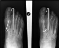 Radiografía del pie fotografía de archivo libre de regalías