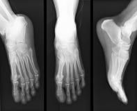Radiografía del pie Foto de archivo libre de regalías