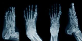 Radiografía del pie de la colección foto de archivo libre de regalías