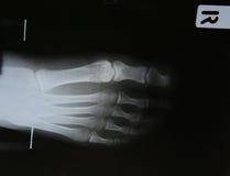 radiografía del pie en fondo Imagen de archivo libre de regalías