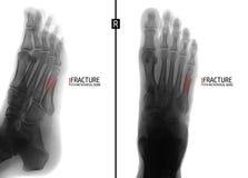 Radiografía del pie Fractura del 5to hueso metatarsiano marker Negativo fotografía de archivo