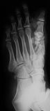 Radiografía del pie, opinión del AP Imagen de archivo