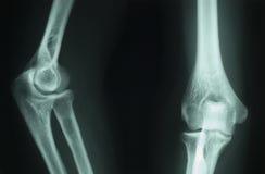Radiografía del rayo X Imágenes de archivo libres de regalías