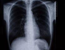 Radiografía del tórax Imágenes de archivo libres de regalías