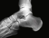 Radiografía del tobillo Imagen de archivo libre de regalías