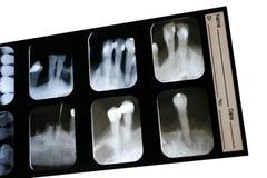 Radiografía dental imagenes de archivo