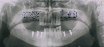 Radiografía dental fotografía de archivo