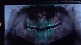 Radiografía dental de la radiografía de la boca llena Una radiografía de dientes con una mano de la bruja del doctor que señala a almacen de video