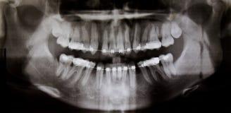 Radiografía dental panorámica Imágenes de archivo libres de regalías