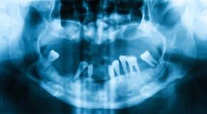 Radiografía dental panorámica Fotografía de archivo libre de regalías