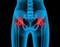 Radiografía dolorosa de las juntas Fotos de archivo libres de regalías