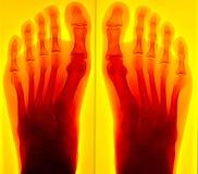 Radiografía dolorosa del pie Imágenes de archivo libres de regalías