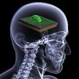 Radiografía esquelética - cerebro de la CPU ilustración del vector