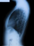 Radiografía femenina del torso fotos de archivo