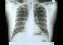 Radiografía masculina del torax Fotografía de archivo libre de regalías