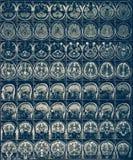 Radiografía Mri de la exploración de cerebro o proyección de imagen de resonancia magnética de la cabeza humana, concepto de la n imagen de archivo
