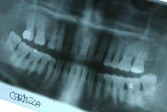 Radiografía panorámica de la boca imagen de archivo libre de regalías