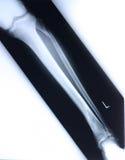 Radiografía/pierna Fotos de archivo