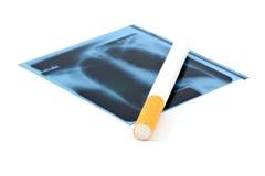 Radiografía y cigarrillo de la película. imagen de archivo libre de regalías