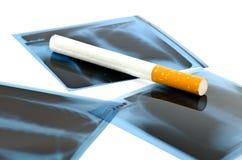 Radiografía y cigarrillo de la película. fotografía de archivo