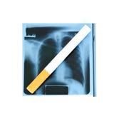 Radiografía y cigarrillo de la película. Imagenes de archivo