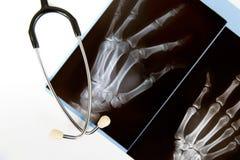 Radiografía y estetoscopio Foto de archivo