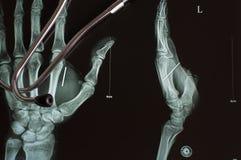 Radiografía y estetoscopio de Digitaces Foto de archivo