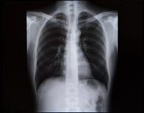 Radiografías de la espina dorsal y del pecho imágenes de archivo libres de regalías