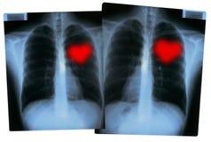 Radiografías de las tarjetas del día de San Valentín - corazones del amor Imagen de archivo libre de regalías