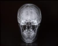 Radiografías del cráneo y de la cavidad interna Fotografía de archivo