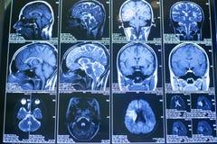 Radiografías, el cerebro humano fotografía de archivo libre de regalías