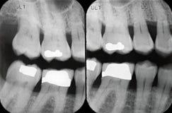 Radiografías periodontales izquierdas Foto de archivo libre de regalías