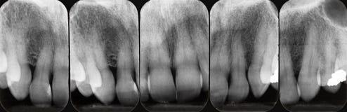 Radiografías periodontales superiores Imagen de archivo
