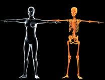 Radiografías y carrocería esqueléticas de la mujer Fotografía de archivo