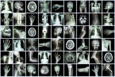 Radiografíe de varias partes del adulto y niño y enfermedad (intestino de la fractura de hueso de la osteoartritis de la piedra d Fotografía de archivo libre de regalías