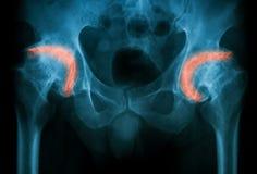 Radiografíe la imagen de ambos cadera, opinión del AP Foto de archivo