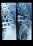 Radiografíe la imagen de la columna espinal con los tornillos después de cirugía Imagen de archivo libre de regalías