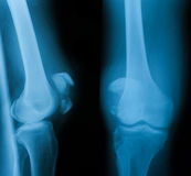 Radiografíe la imagen de la junta de rodilla, del AP y de la visión lateral Imagen de archivo libre de regalías