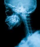 Radiografíe la imagen de la mandíbula quebrada, visión lateral Foto de archivo
