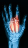 Radiografíe la imagen de la mano quebrada, opinión del AP Imagenes de archivo
