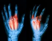 Radiografíe la imagen de la mano quebrada, visión lateral Foto de archivo libre de regalías