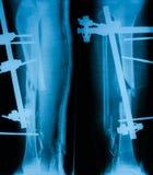 Radiografíe la imagen de la pierna quebrada, del AP y de la visión lateral Fotografía de archivo