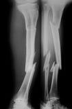 Radiografíe la imagen de la pierna quebrada, del AP y de la visión lateral Imagen de archivo