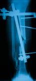Radiografíe la imagen de la pierna quebrada, opinión del AP Fotos de archivo
