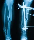 Radiografíe la imagen de la pierna quebrada, opinión del AP Imagen de archivo libre de regalías