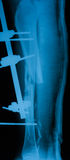 Radiografíe la imagen de la pierna quebrada, visión lateral Fotografía de archivo