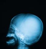 Radiografíe la imagen del cráneo del bebé, vista delantera Foto de archivo libre de regalías