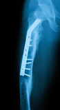 Radiografíe la imagen del fémur, opinión del AP, mostrando fractura del fémur con el commpr Fotos de archivo